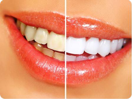 Как добиться белизны зубной эмали и предотвратить ее потемнение?