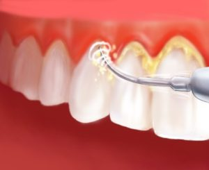 Отсутствие зубного камня – залог здоровой улыбки
