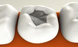 Секреты зубной пломбы!