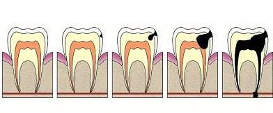 Как бороться с главным врагом зубов – кариесом