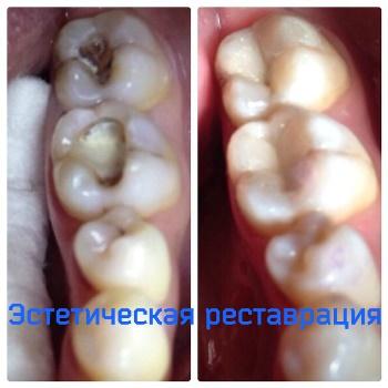 Лечение зубов в Казани