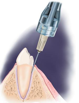 Анестезия зубов в Казани