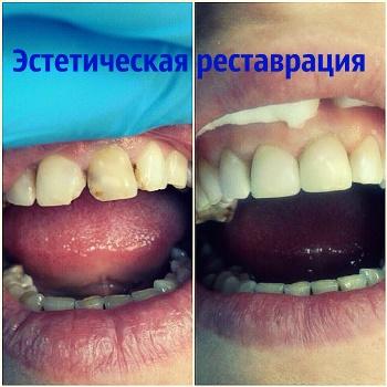 Наращивание зубов в Казани