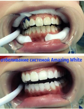 Отбеливание зубов в Казани